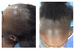 Exemple d'une chute due à une alopécie de traction chez une femme.e